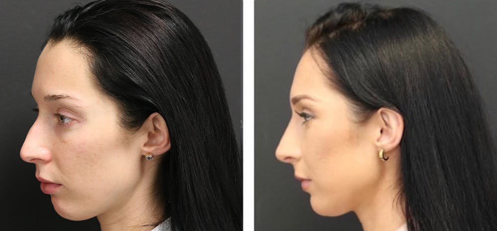 Aesthetic Facial Balancing Gallery - Patient 11681593 - Image 3