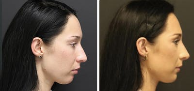 Aesthetic Facial Balancing Gallery - Patient 11681593 - Image 4