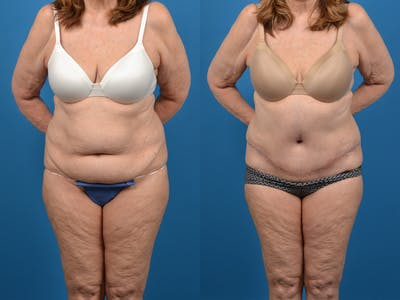 Abdominoplasty Gallery - Patient 18427840 - Image 1