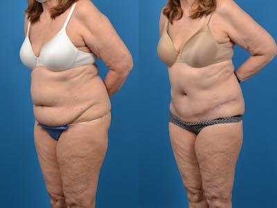 Abdominoplasty Gallery - Patient 18427840 - Image 2