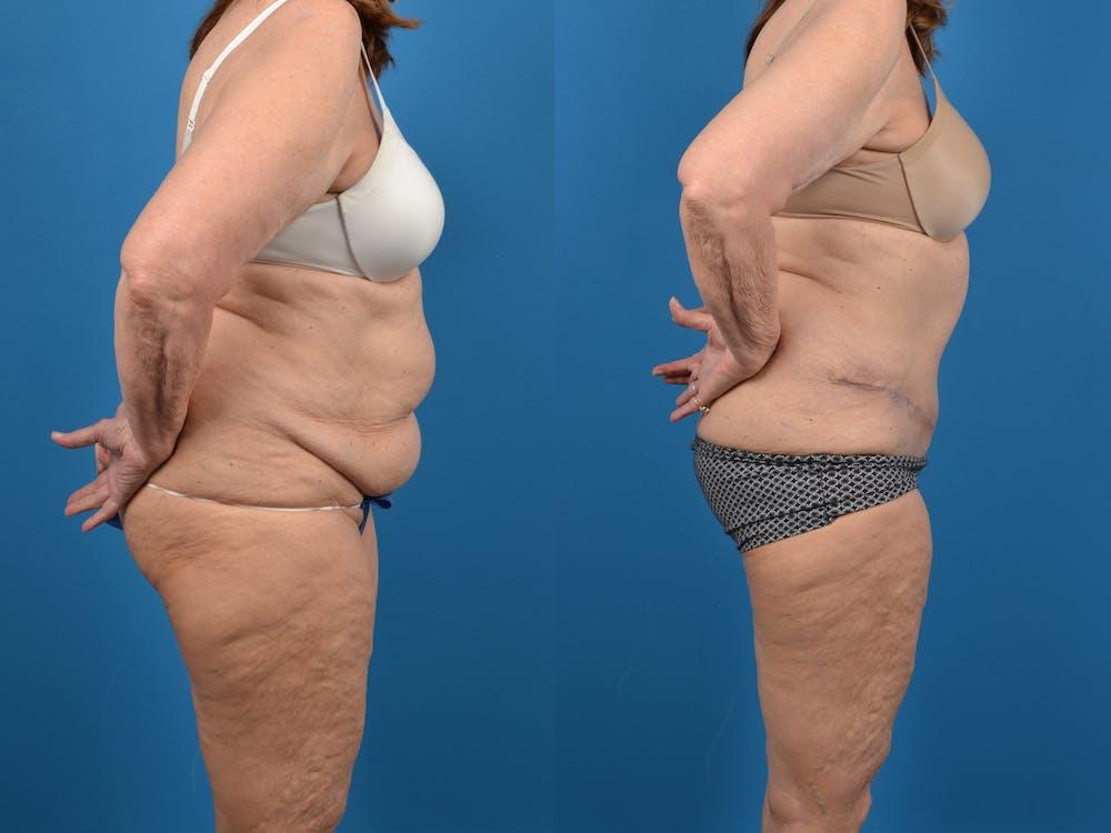 Abdominoplasty Gallery - Patient 18427840 - Image 5
