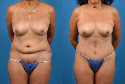 Abdominoplasty Gallery - Patient 18427841 - Image 1