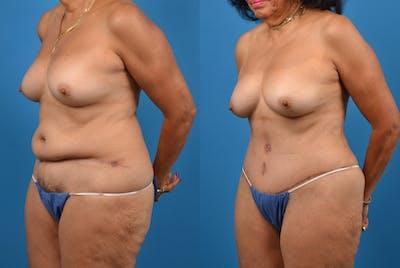 Abdominoplasty Gallery - Patient 18427841 - Image 2