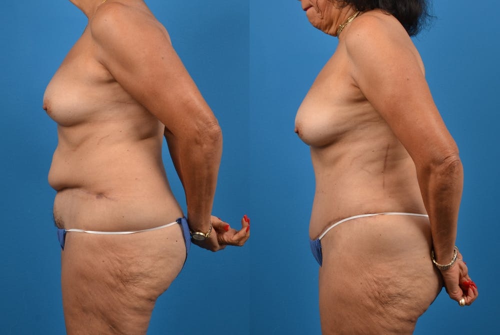 Abdominoplasty Gallery - Patient 18427841 - Image 3