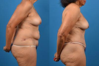 Abdominoplasty Gallery - Patient 18427841 - Image 4