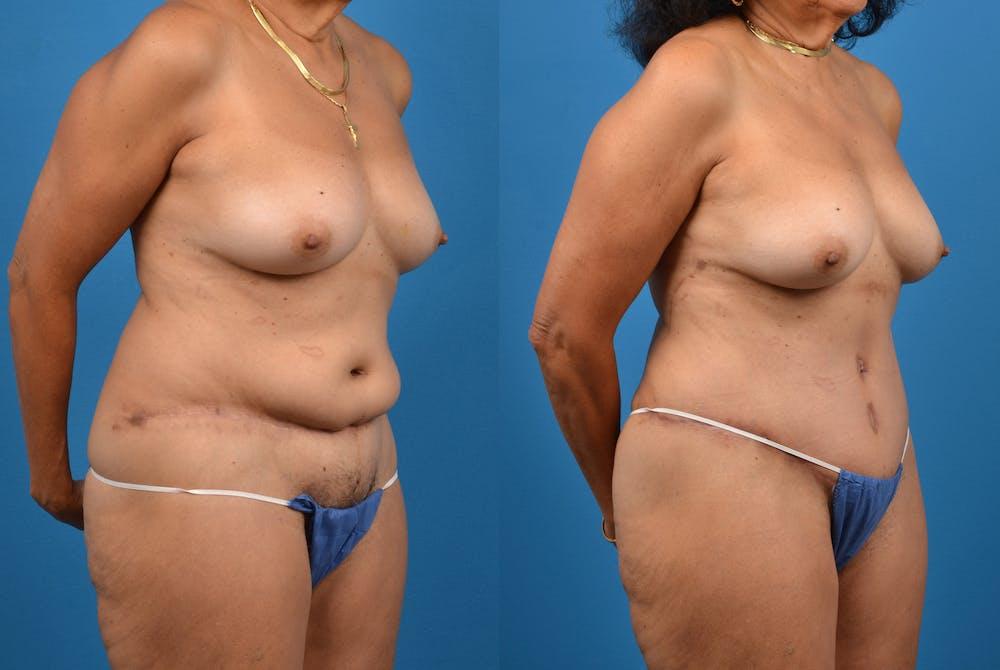 Abdominoplasty Gallery - Patient 18427841 - Image 5