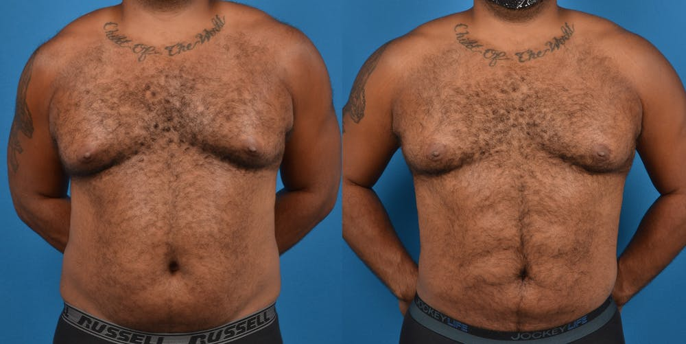 Abdominal Etching Gallery - Patient 18427898 - Image 1