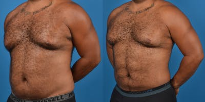 Abdominal Etching Gallery - Patient 18427898 - Image 2