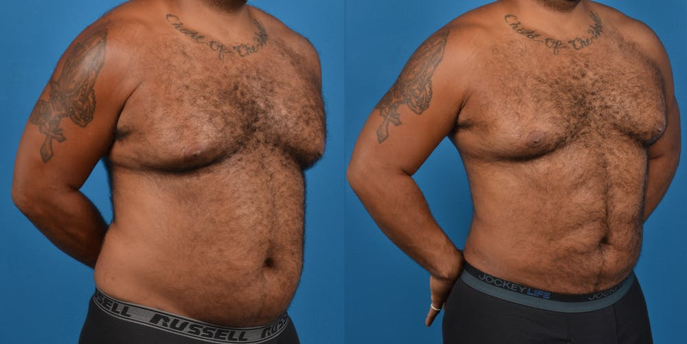 Abdominal Etching Gallery - Patient 18427898 - Image 3