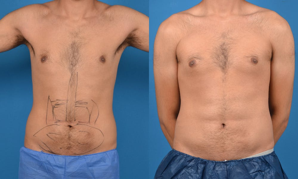 Abdominal Etching Gallery - Patient 18427899 - Image 1