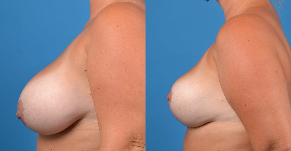 Breast Lift Gallery - Patient 14242475 - Image 2