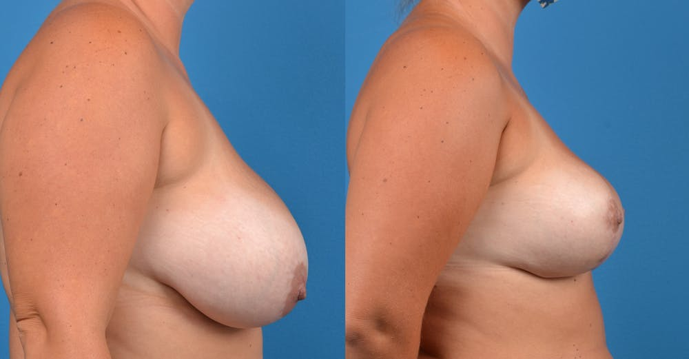 Breast Lift Gallery - Patient 14242475 - Image 3