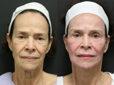 Facelift Gallery - Patient 14282331 - Image 1