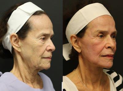 Facelift Gallery - Patient 14282331 - Image 2
