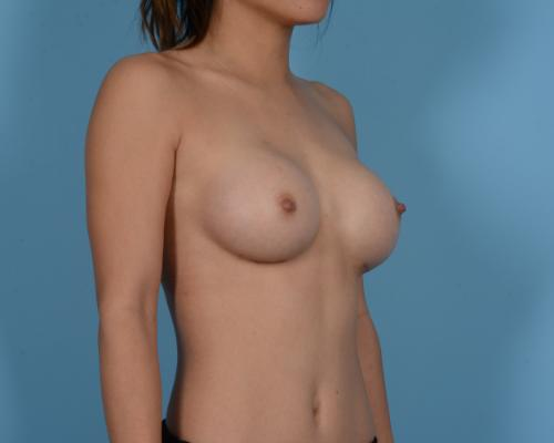 Breast Augmentation Gallery - Patient 10380356 - Image 4