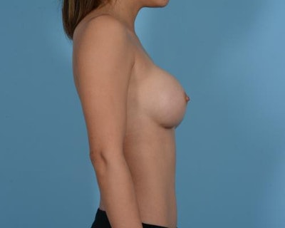 Breast Augmentation Gallery - Patient 10380356 - Image 6