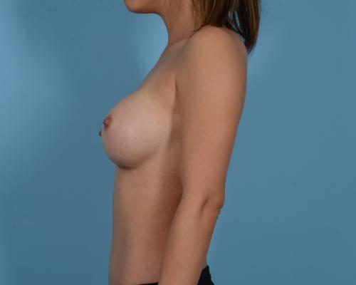 Breast Augmentation Gallery - Patient 10380356 - Image 8