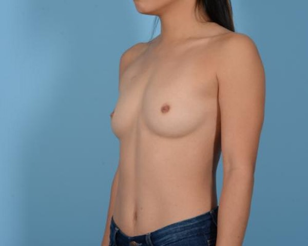 Breast Augmentation Gallery - Patient 10380356 - Image 9