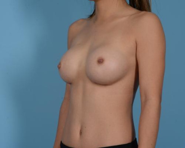 Breast Augmentation Gallery - Patient 10380356 - Image 10