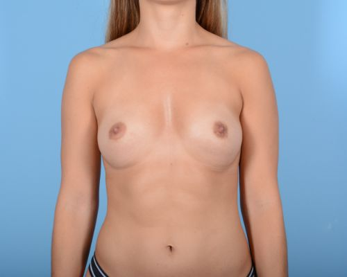 Breast Augmentation Gallery - Patient 10380359 - Image 1