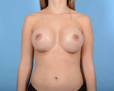 Breast Augmentation Gallery - Patient 10380359 - Image 2