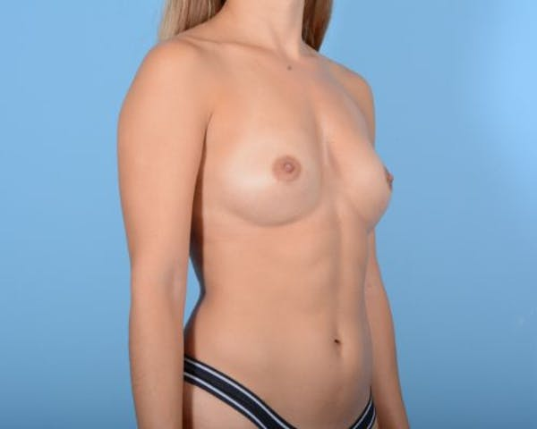 Breast Augmentation Gallery - Patient 10380359 - Image 3