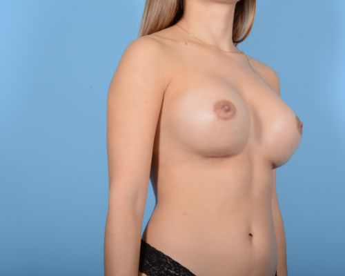 Breast Augmentation Gallery - Patient 10380359 - Image 4