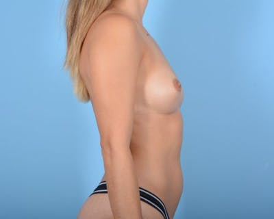 Breast Augmentation Gallery - Patient 10380359 - Image 5