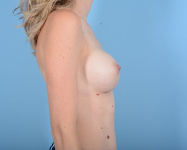 Breast Augmentation Gallery - Patient 10380360 - Image 8