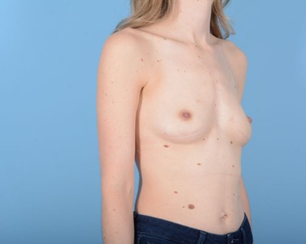 Breast Augmentation Gallery - Patient 10380360 - Image 9