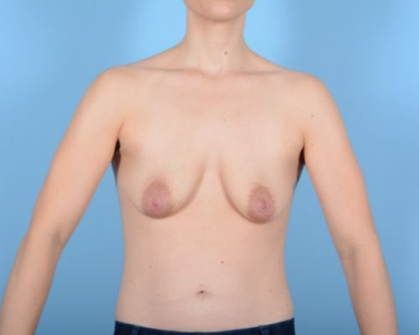 Breast Augmentation Gallery - Patient 10380361 - Image 1