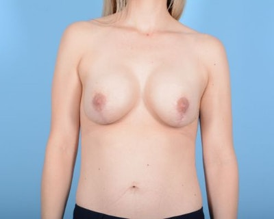 Breast Augmentation Gallery - Patient 10380361 - Image 2