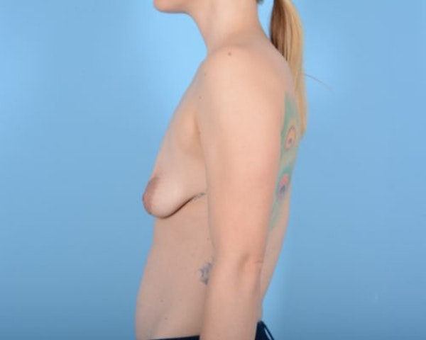 Breast Augmentation Gallery - Patient 10380361 - Image 3
