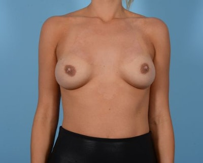 Breast Augmentation Gallery - Patient 10380364 - Image 1