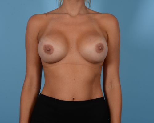 Breast Augmentation Gallery - Patient 10380364 - Image 2
