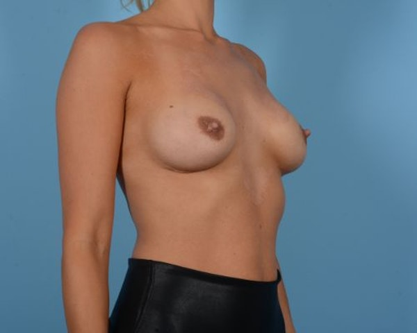 Breast Augmentation Gallery - Patient 10380364 - Image 3