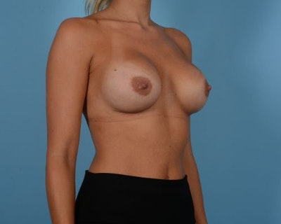 Breast Augmentation Gallery - Patient 10380364 - Image 4