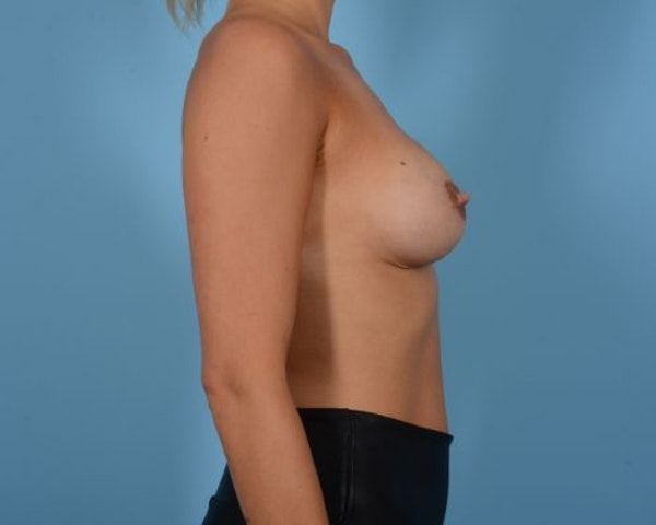 Breast Augmentation Gallery - Patient 10380364 - Image 5