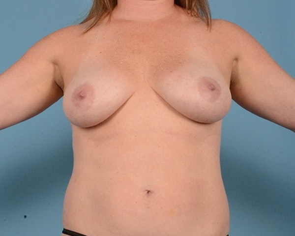 Breast Augmentation Gallery - Patient 10380367 - Image 1