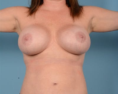 Breast Augmentation Gallery - Patient 10380367 - Image 2