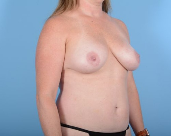 Breast Augmentation Gallery - Patient 10380367 - Image 3