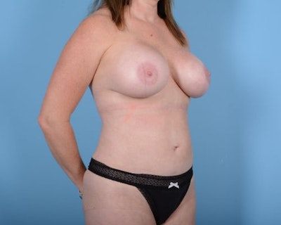 Breast Augmentation Gallery - Patient 10380367 - Image 4