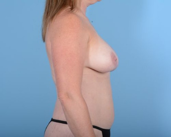Breast Augmentation Gallery - Patient 10380367 - Image 5