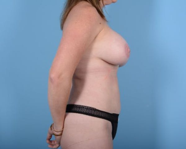 Breast Augmentation Gallery - Patient 10380367 - Image 6