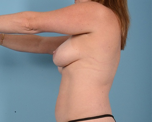 Breast Augmentation Gallery - Patient 10380367 - Image 7