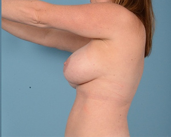 Breast Augmentation Gallery - Patient 10380367 - Image 8