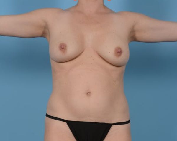 Breast Augmentation Gallery - Patient 10380368 - Image 1