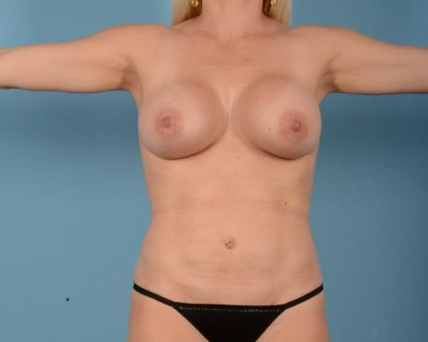 Breast Augmentation Gallery - Patient 10380368 - Image 2