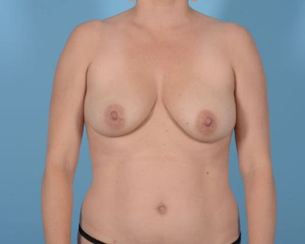 Breast Augmentation Gallery - Patient 10380368 - Image 3