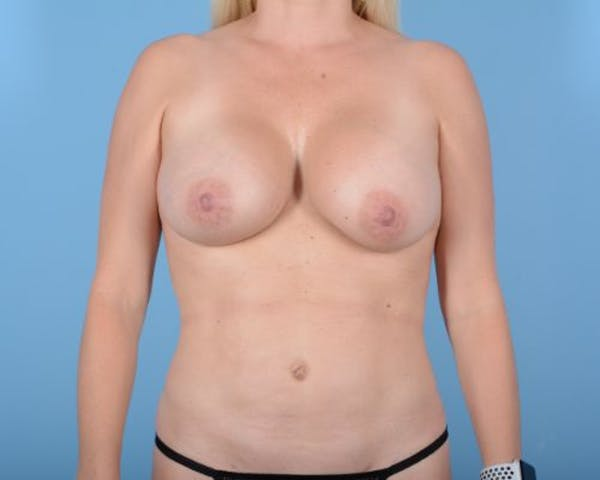 Breast Augmentation Gallery - Patient 10380368 - Image 4